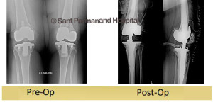revision-total-knee-replacement-done-by-dr-shekhar-agarwal
