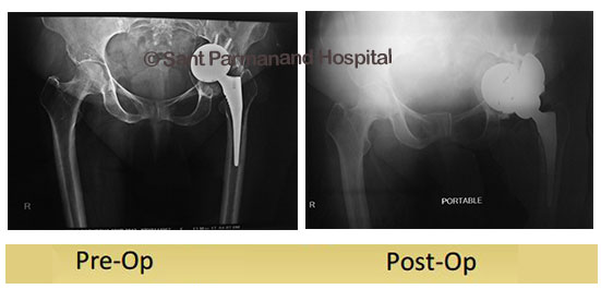 revision-total-knee-replacement-bela-sachdeva-done-by-dr-shekhar-agarwal