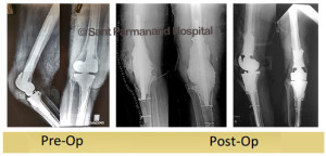 revision-total-knee-replacement-jayant