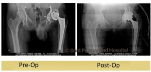 Total-Hip-Replacement-Revision-Acetabulum