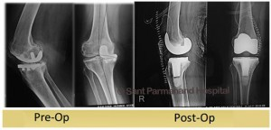 Uni-condylar-to-Total-Knee-Replacement