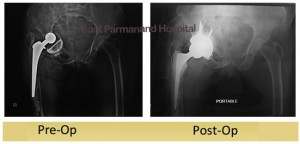 partial-hip-replacementdiabetic-and-hypertensive