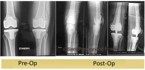 revision-knee-replacement-rotating-hinge