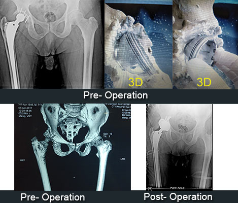 Re-Revision-Total-Hip-Replacement