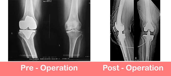Revision-Total-Knee-Replacement