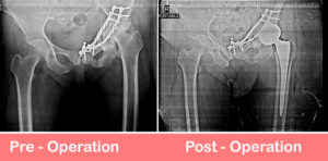 Total-Hip-Arthroplasty-Dual-Mobility