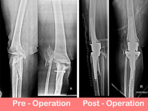 Post traumatic primary complex knee replacement