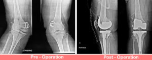 Valgus Knees - Total Knee Replacement