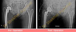 Revision Total Hip Replacement (THR)