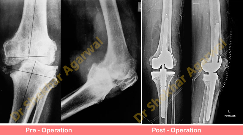 Primary Complex Total Knee Replacement