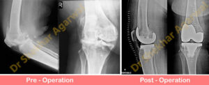 primary-complex-knee-replacement